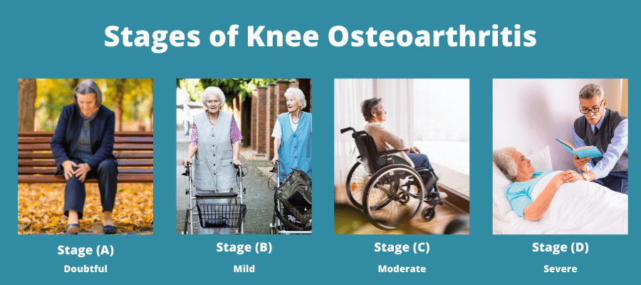 Stages of Knee Osteoarthritis
