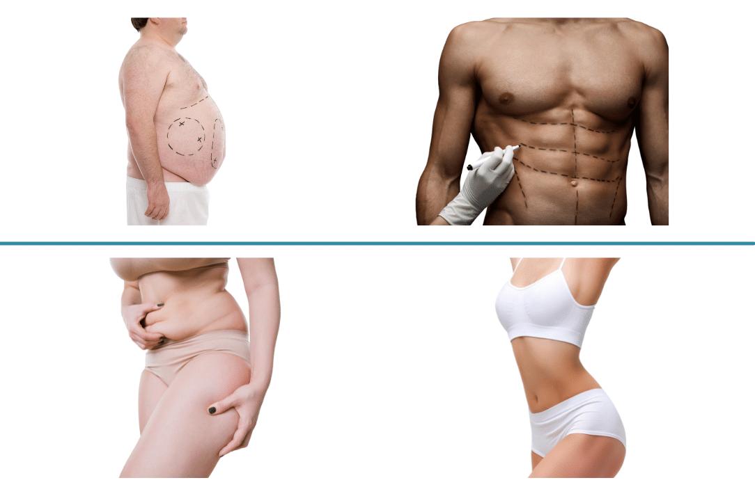 Vaser Liposuction Surgery